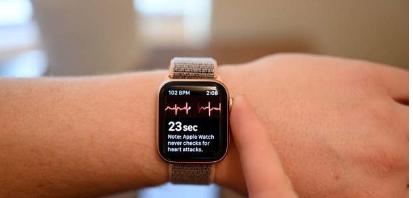 苹果WatchSeries6的后继产品可能最终会配备新颖的传感器