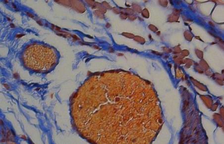 使用光红血球和蜜蜂肽来输送治疗性蛋白质
